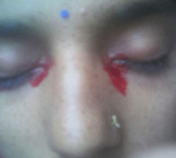 Housewife who bleeds from her eyes during her period baffles doctors